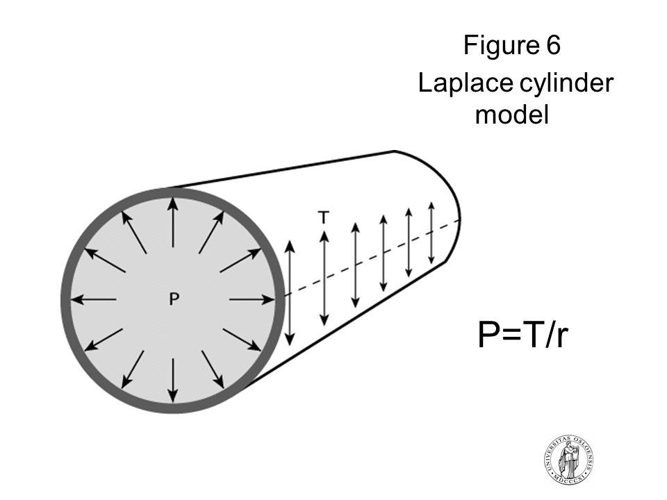 Figure 6 Laplace cylinder model P=T/r
