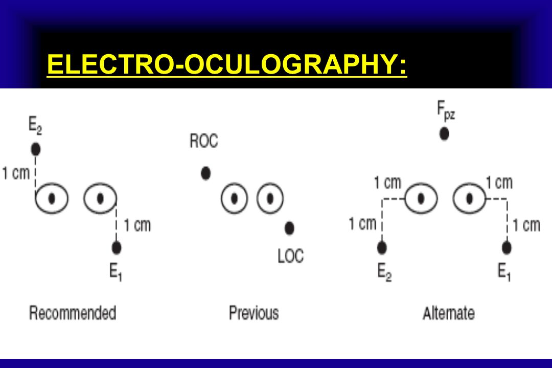 ELECTRO-OCULOGRAPHY: