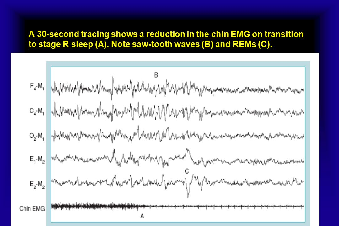 A 30-second tracing shows a reduction in the chin EMG on transition to stage R sleep (A).