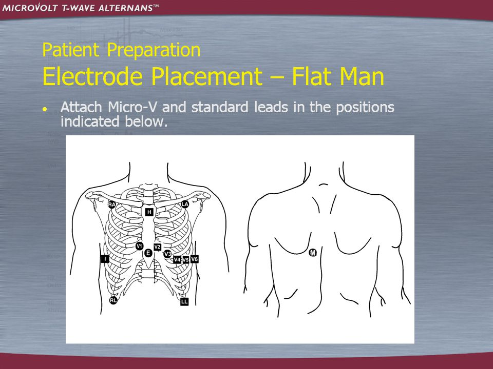 Patient Preparation Electrode Placement – Flat Man  Attach Micro-V and standard leads in the positions indicated below.