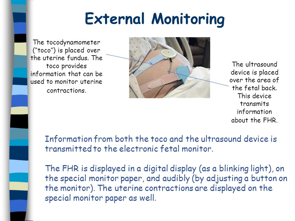 External Monitoring Information from both the toco and the ultrasound device is transmitted to the electronic fetal monitor.