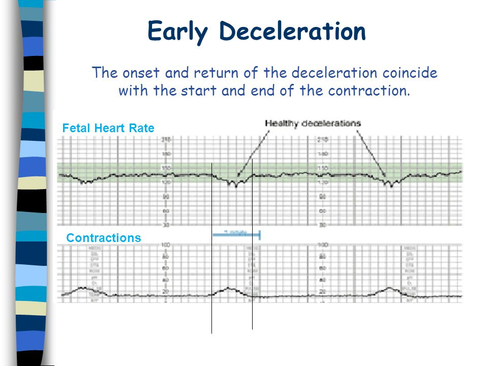 Early Deceleration The onset and return of the deceleration coincide with the start and end of the contraction.