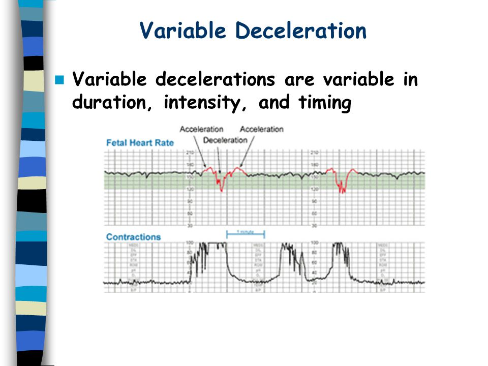 Variable Deceleration Variable decelerations are variable in duration, intensity, and timing