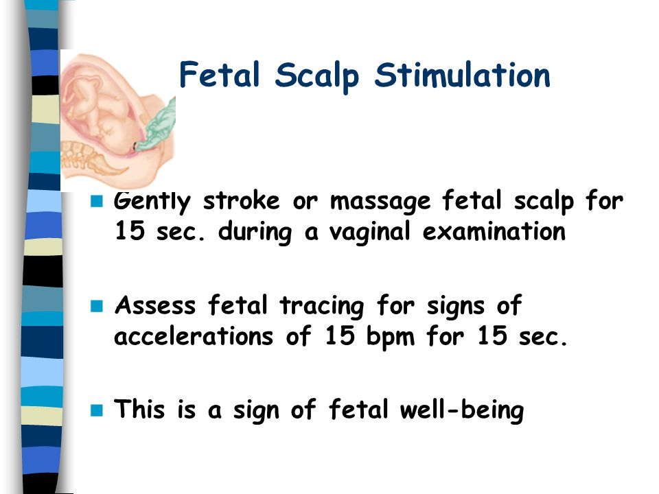 Fetal Scalp Stimulation Gently stroke or massage fetal scalp for 15 sec.