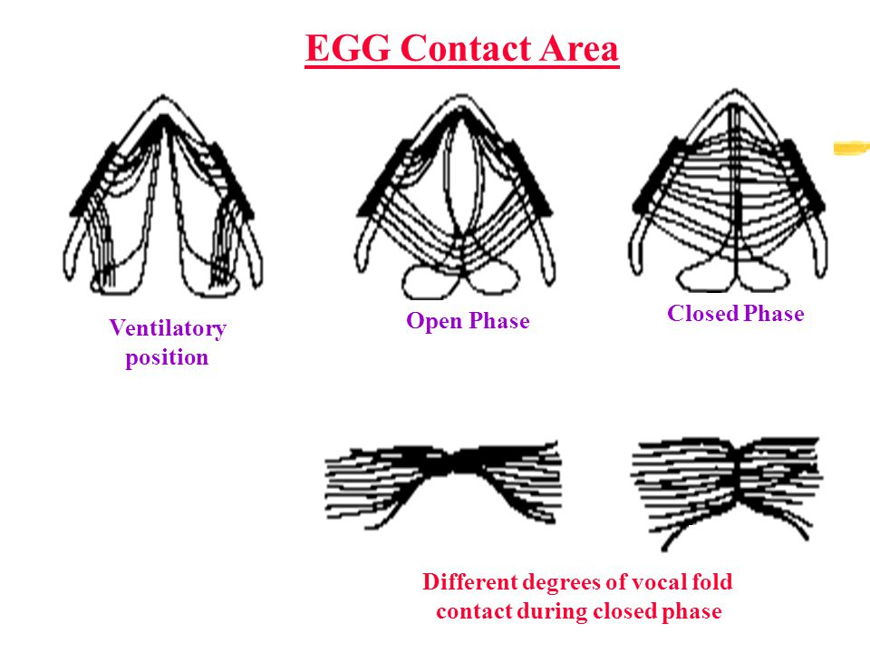 EGG Contact Area Ventilatory position Open Phase Closed Phase Different degrees of vocal fold contact during closed phase