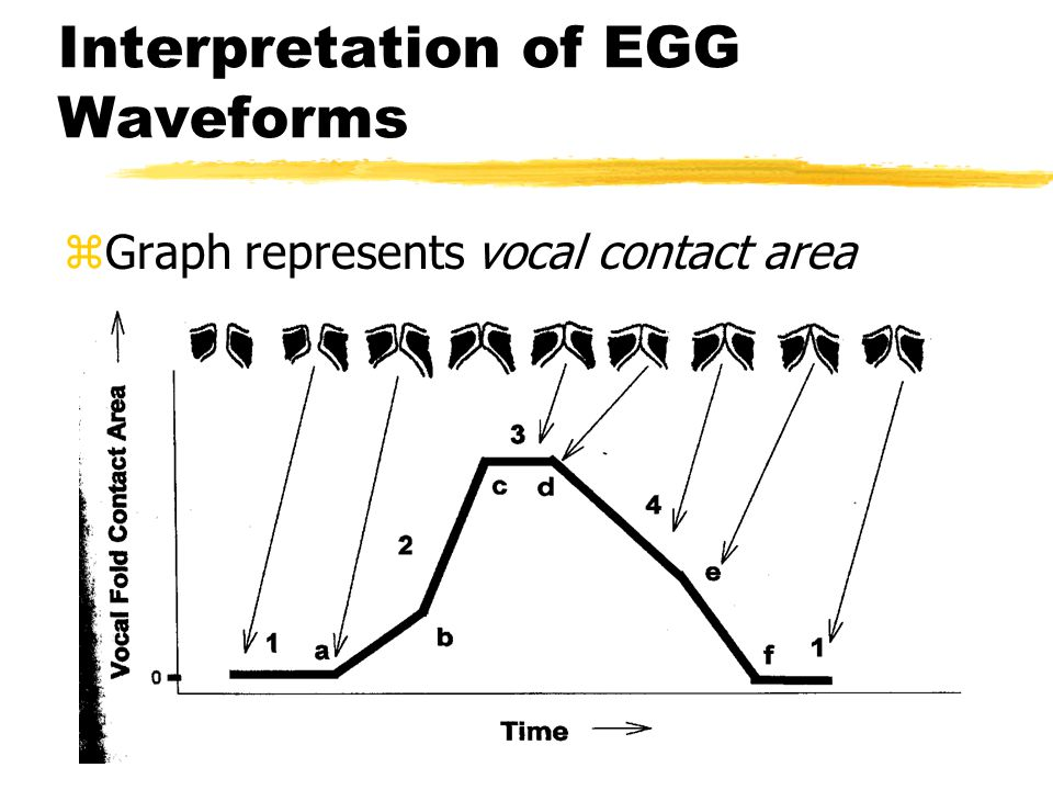 Interpretation of EGG Waveforms zGraph represents vocal contact area