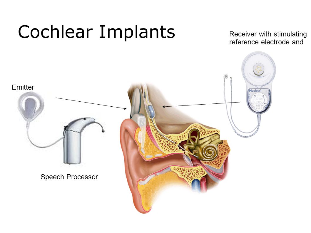 Modern Hearing Aids Tend to be small to be easily concealed behind the ear or in the ear canal.