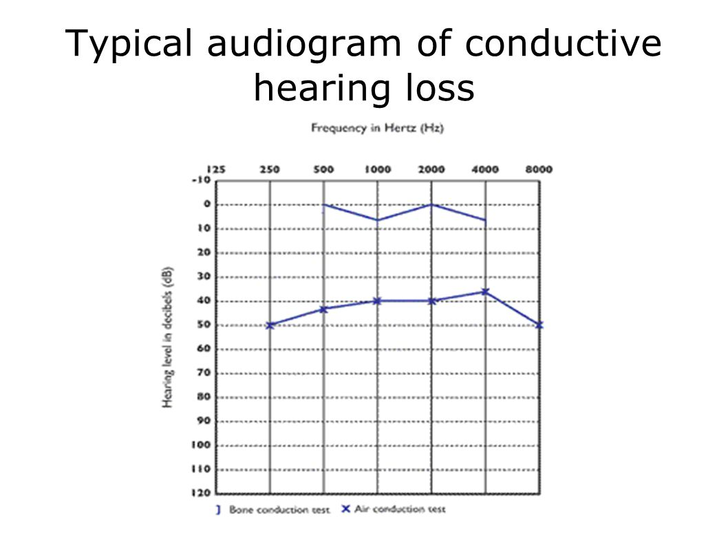 Typical audiogram of conductive hearing loss