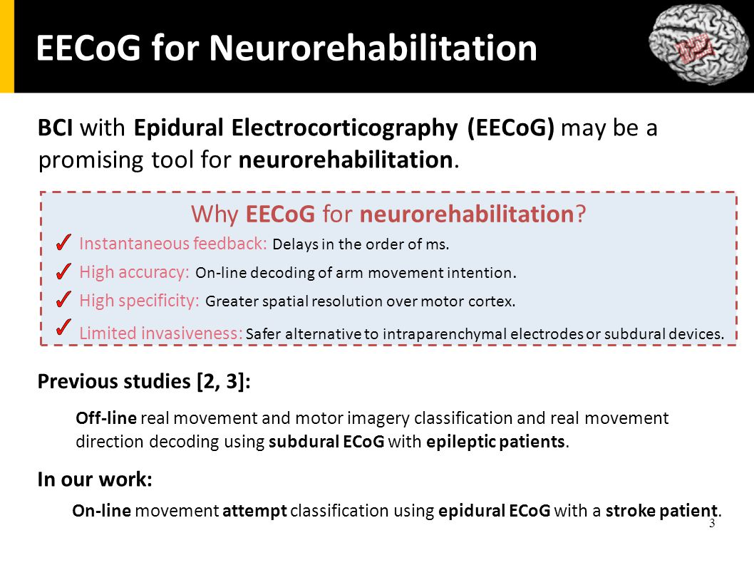 3 EECoG for Neurorehabilitation BCI with Epidural Electrocorticography (EECoG) may be a promising tool for neurorehabilitation.
