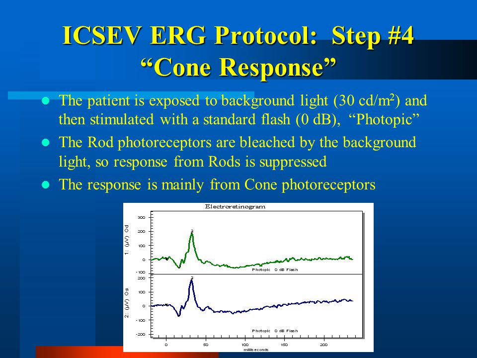 ICSEV ERG Protocol: Step #4 Cone Response The patient is exposed to background light (30 cd/m 2 ) and then stimulated with a standard flash (0 dB), Photopic The Rod photoreceptors are bleached by the background light, so response from Rods is suppressed The response is mainly from Cone photoreceptors
