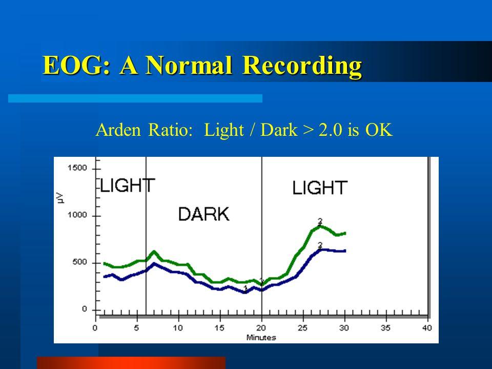EOG: A Normal Recording Arden Ratio: Light / Dark > 2.0 is OK