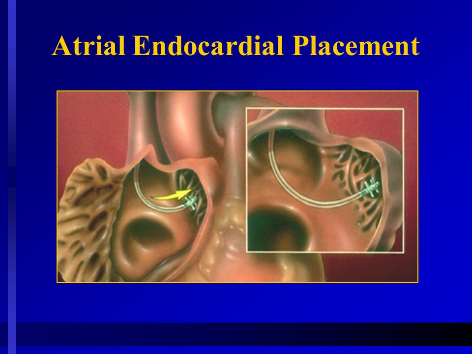 Atrial Endocardial Placement