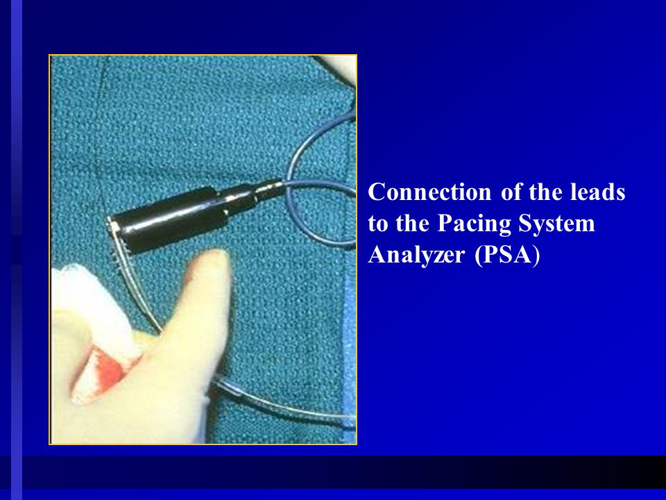 Connection of the leads to the Pacing System Analyzer (PSA)