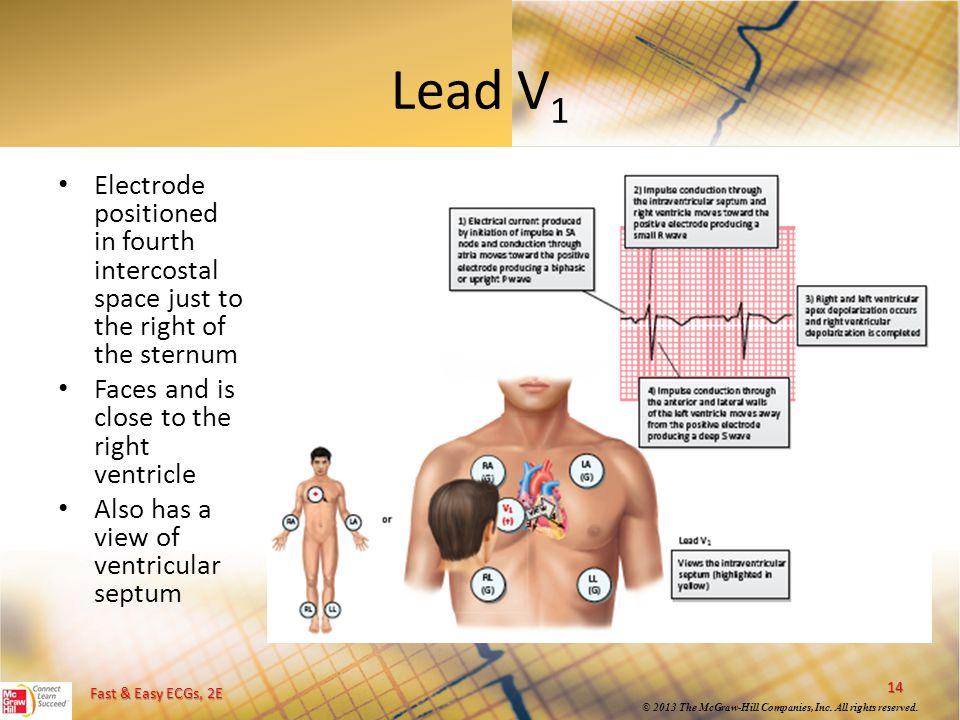 Fast & Easy ECGs, 2E © 2013 The McGraw-Hill Companies, Inc. All rights reserved. Lead V 1 Electrode positioned in fourth intercostal space just to the