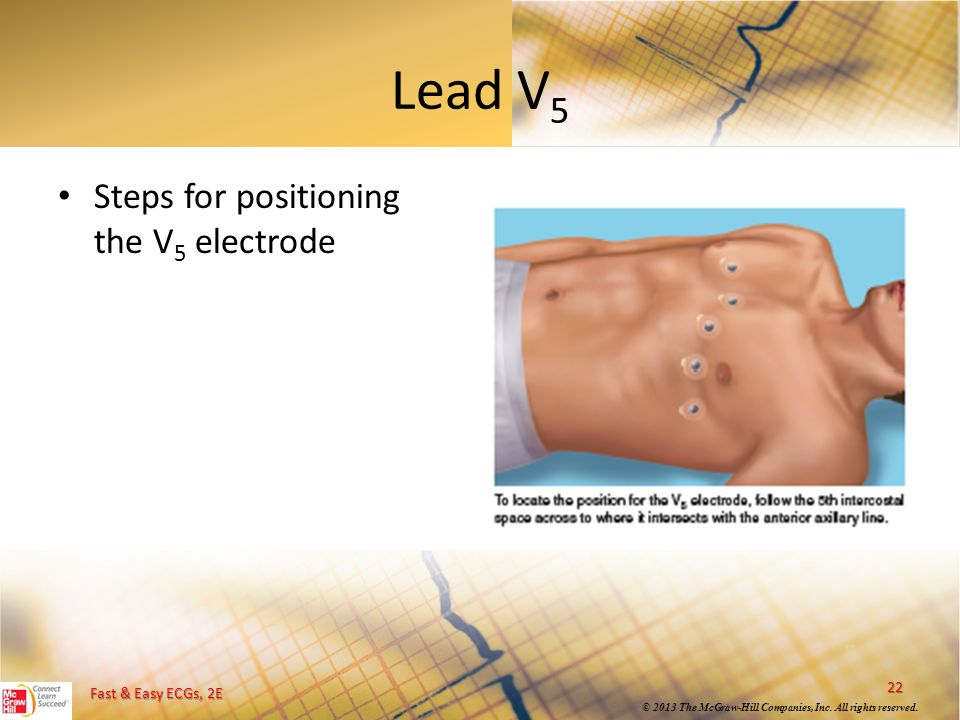 Fast & Easy ECGs, 2E © 2013 The McGraw-Hill Companies, Inc. All rights reserved. Lead V 5 22 Steps for positioning the V 5 electrode