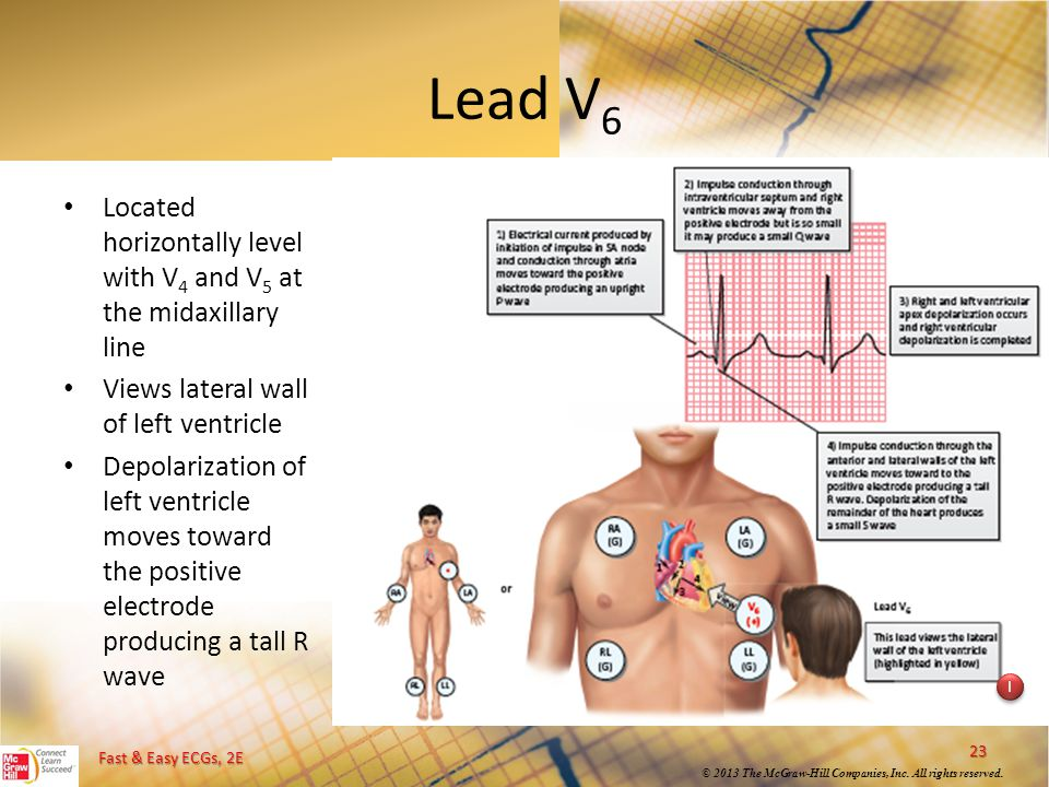 Fast & Easy ECGs, 2E © 2013 The McGraw-Hill Companies, Inc. All rights reserved. Lead V 6 Located horizontally level with V 4 and V 5 at the midaxilla