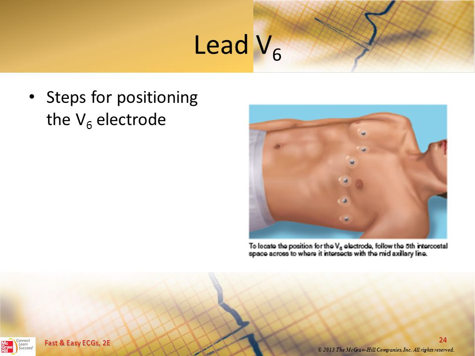Fast & Easy ECGs, 2E © 2013 The McGraw-Hill Companies, Inc. All rights reserved. Lead V 6 24 Steps for positioning the V 6 electrode