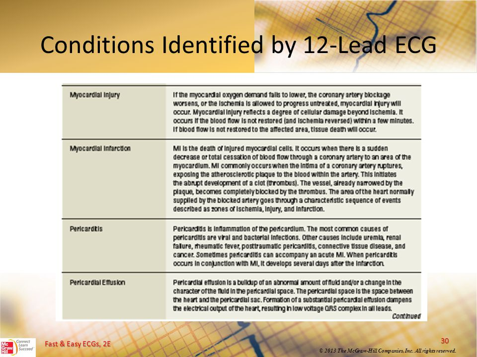 Fast & Easy ECGs, 2E © 2013 The McGraw-Hill Companies, Inc. All rights reserved. Conditions Identified by 12-Lead ECG 30