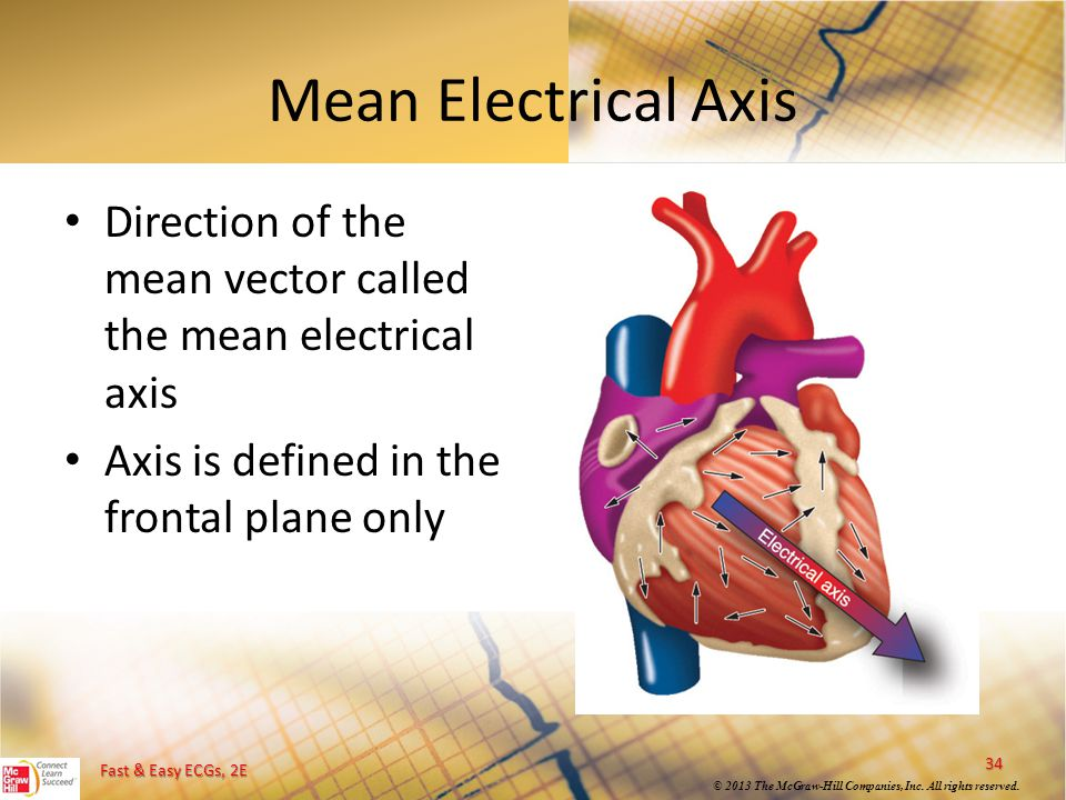 Fast & Easy ECGs, 2E © 2013 The McGraw-Hill Companies, Inc. All rights reserved. Mean Electrical Axis Direction of the mean vector called the mean ele