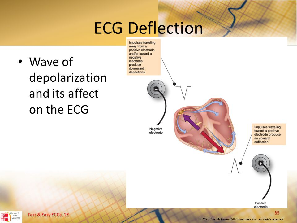 Fast & Easy ECGs, 2E © 2013 The McGraw-Hill Companies, Inc. All rights reserved. ECG Deflection Wave of depolarization and its affect on the ECG 35
