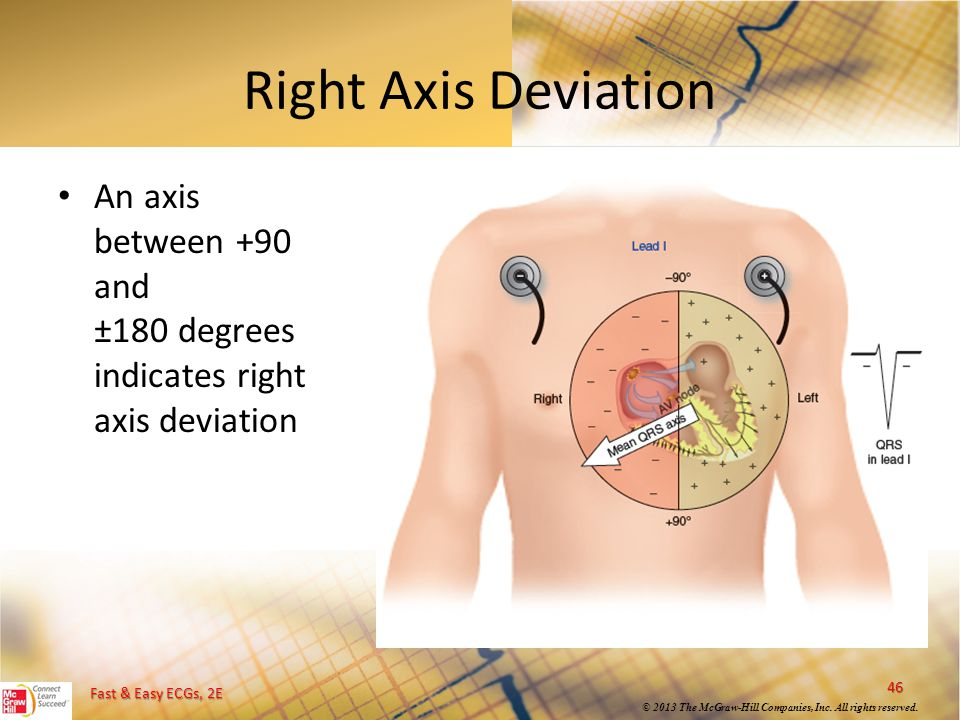 Fast & Easy ECGs, 2E © 2013 The McGraw-Hill Companies, Inc. All rights reserved. Right Axis Deviation An axis between +90 and ±180 degrees indicates r