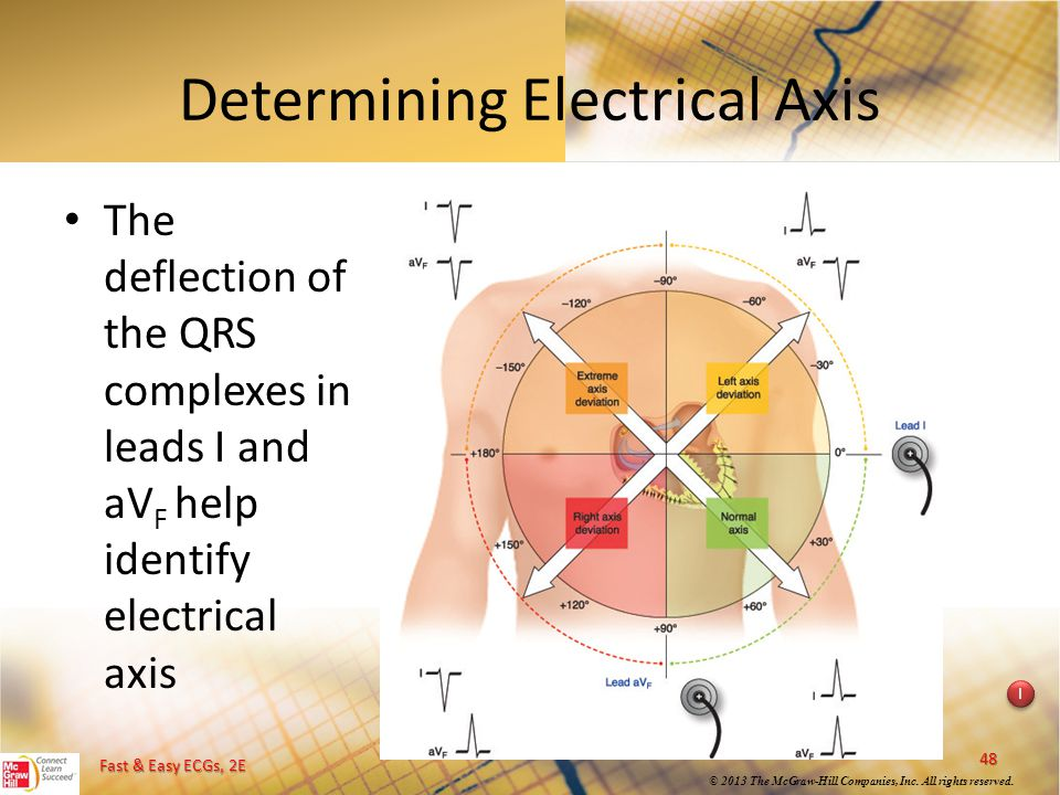 Fast & Easy ECGs, 2E © 2013 The McGraw-Hill Companies, Inc. All rights reserved. I I Determining Electrical Axis The deflection of the QRS complexes i
