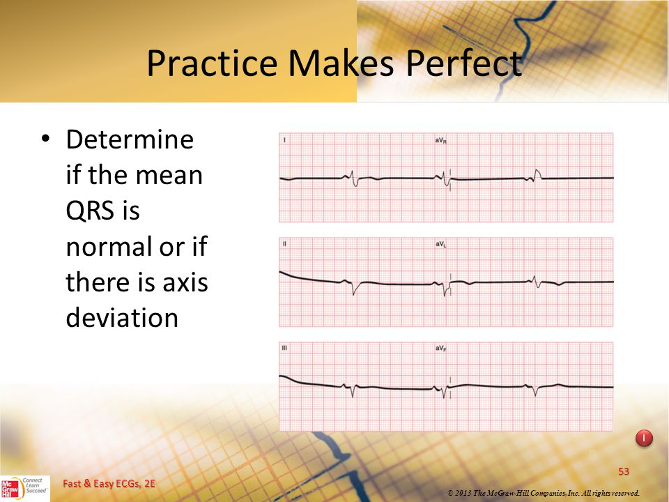 Fast & Easy ECGs, 2E © 2013 The McGraw-Hill Companies, Inc. All rights reserved. Practice Makes Perfect Determine if the mean QRS is normal or if ther