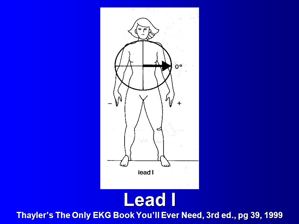 Lead I Thayler's The Only EKG Book You'll Ever Need, 3rd ed., pg 39, 1999