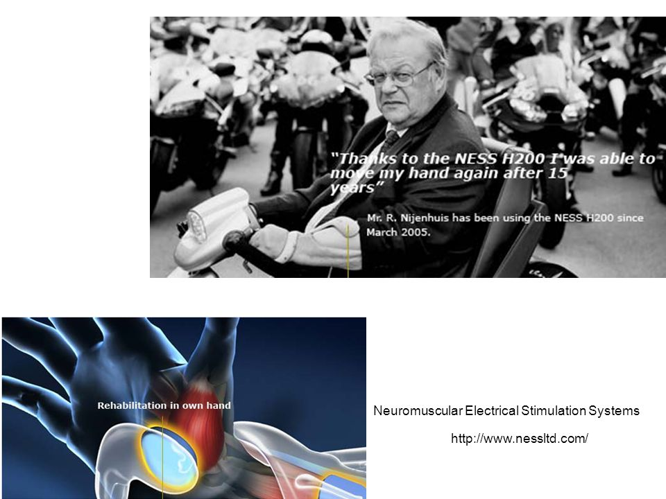http://www.nessltd.com/ Neuromuscular Electrical Stimulation Systems