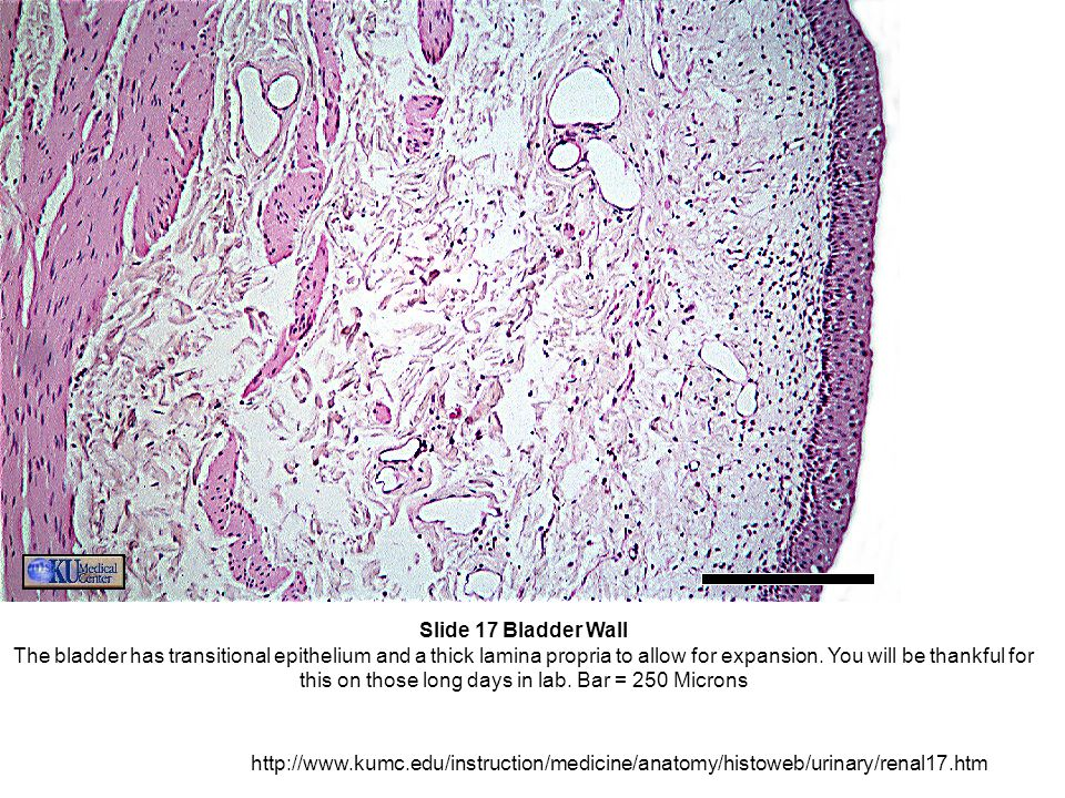 Slide 17 Bladder Wall The bladder has transitional epithelium and a thick lamina propria to allow for expansion.