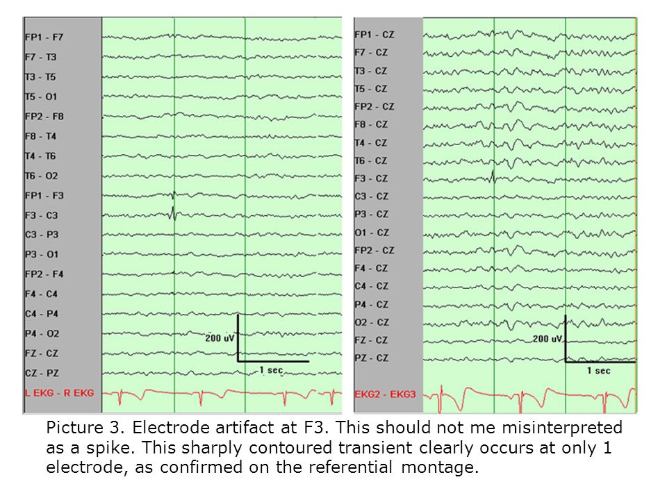 Picture 3. Electrode artifact at F3. This should not me misinterpreted as a spike.