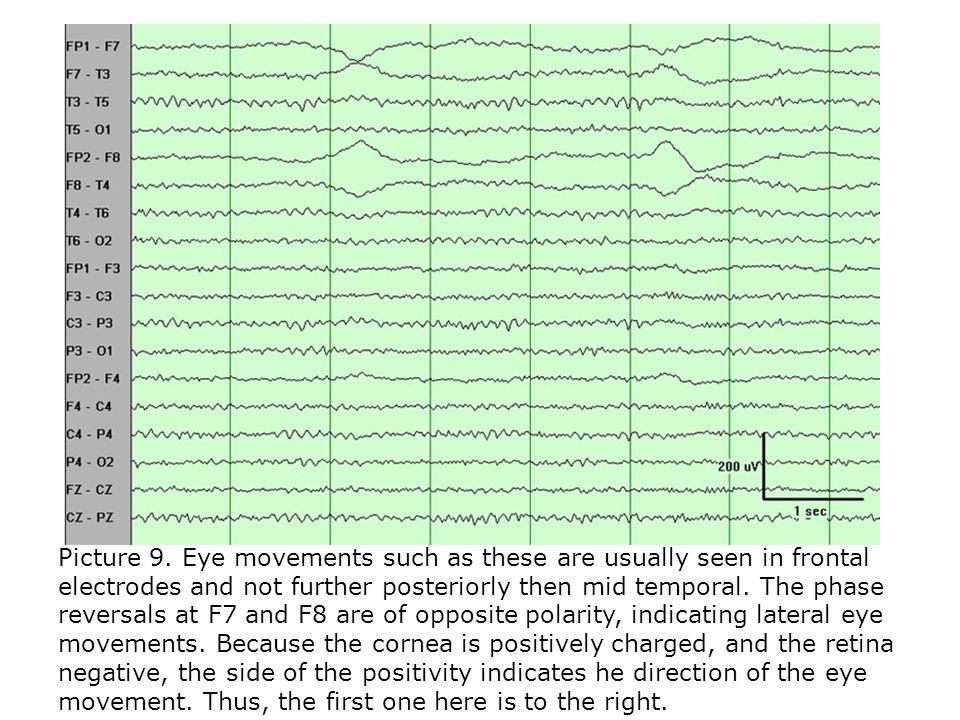 Picture 9. Eye movements such as these are usually seen in frontal electrodes and not further posteriorly then mid temporal. The phase reversals at F7