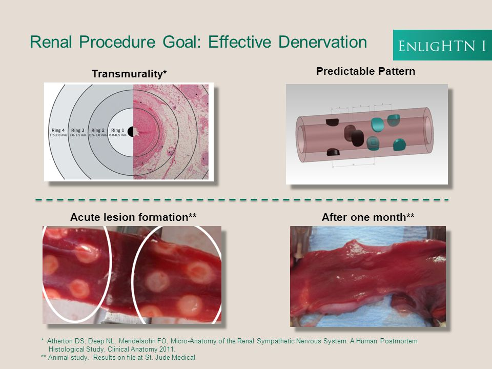 Procedure Overview  Initial basket positioning proximal to the bifurcation  Expand basket and perform generator diagnostic check for electrode contact  Ablate – 90 seconds per electrode  For a second set of ablations the basket is collapsed, pulled back 1 cm, rotated and expanded, contact is checked and ablation sequence repeated