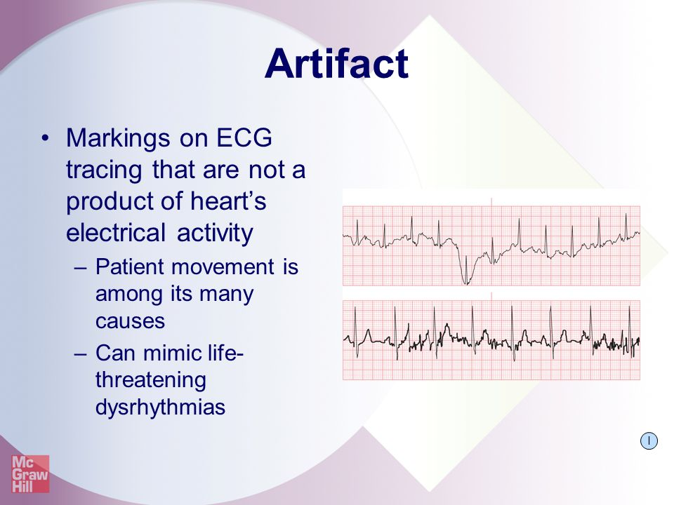 Artifact Markings on ECG tracing that are not a product of heart's electrical activity –Patient movement is among its many causes –Can mimic life- thr