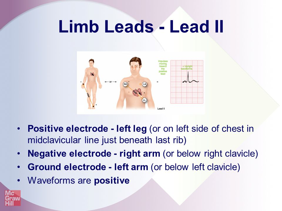 Limb Leads - Lead II Positive electrode - left leg (or on left side of chest in midclavicular line just beneath last rib) Negative electrode - right a