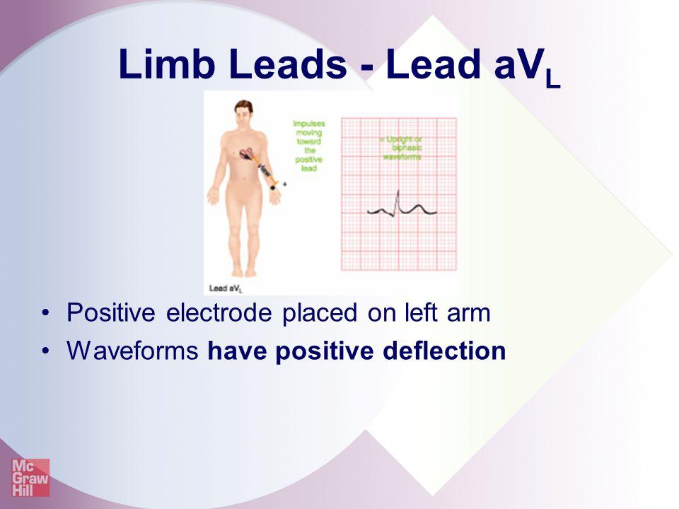 Limb Leads - Lead aV L Positive electrode placed on left arm Waveforms have positive deflection