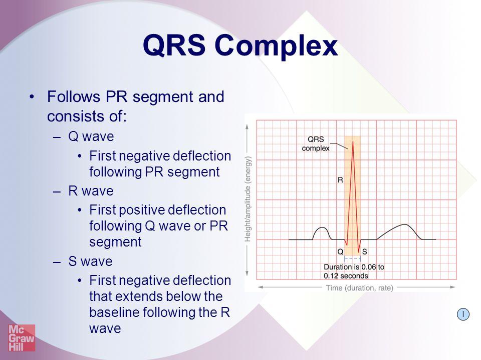 QRS Complex Follows PR segment and consists of: –Q wave First negative deflection following PR segment –R wave First positive deflection following Q w