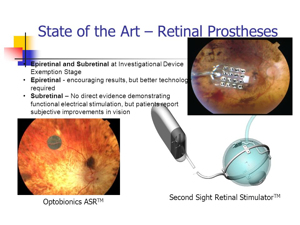 State of the Art – Retinal Prostheses Epiretinal and Subretinal at Investigational Device Exemption Stage Epiretinal - encouraging results, but better