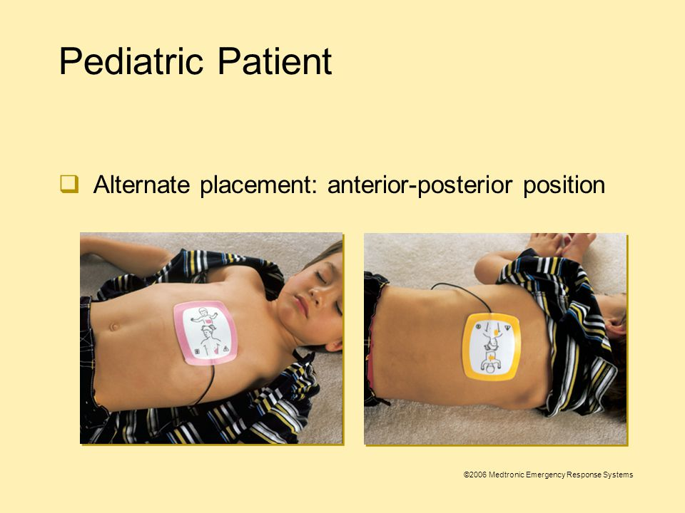 ©2006 Medtronic Emergency Response Systems Pediatric Patient  Place the Infant/Child Electrodes in the anterior-lateral position