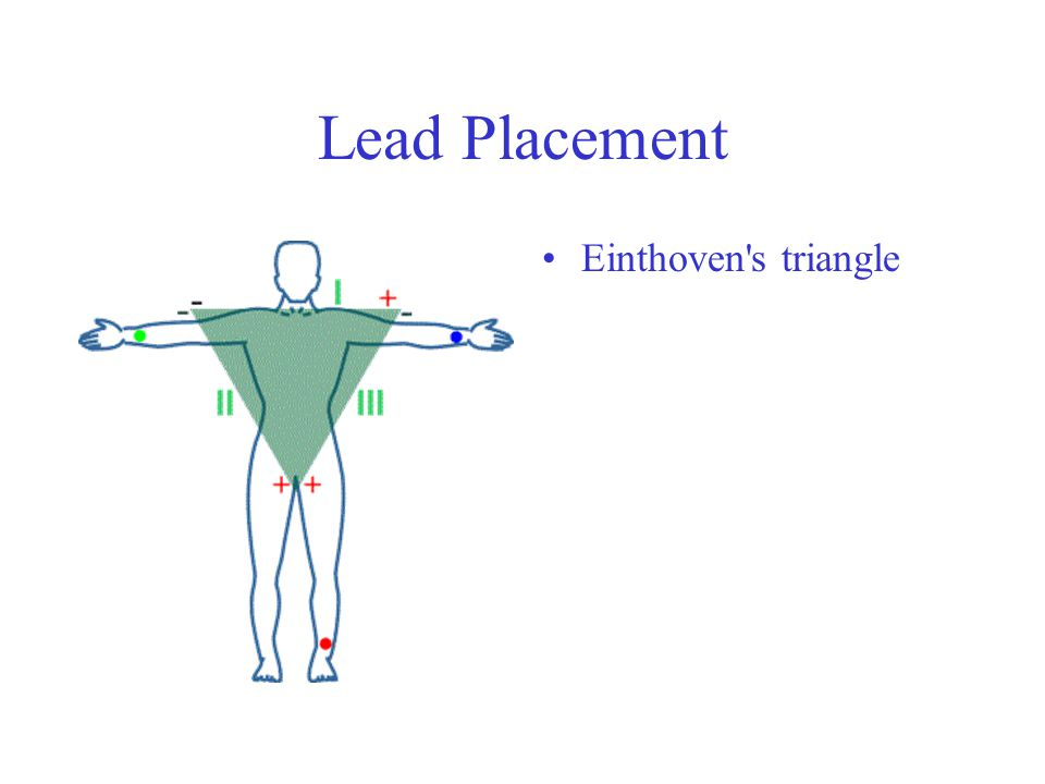 Lead Placement Einthoven s triangle
