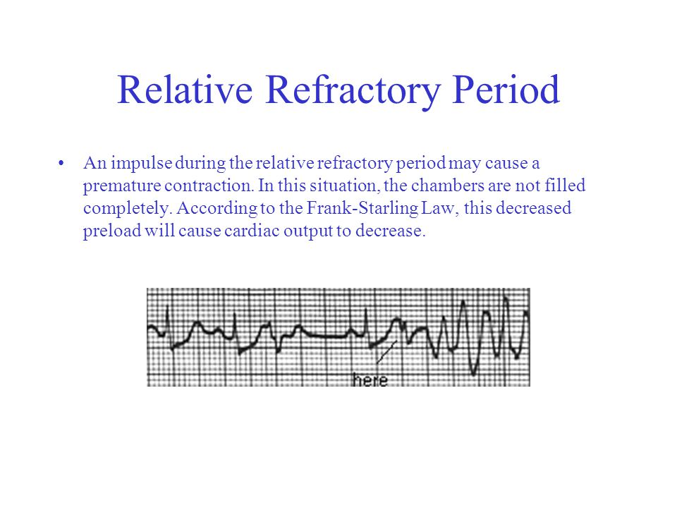 Relative Refractory Period An impulse during the relative refractory period may cause a premature contraction.
