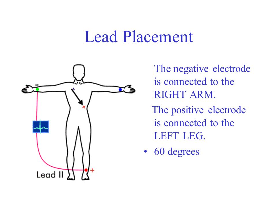 Lead Placement The negative electrode is connected to the RIGHT ARM.