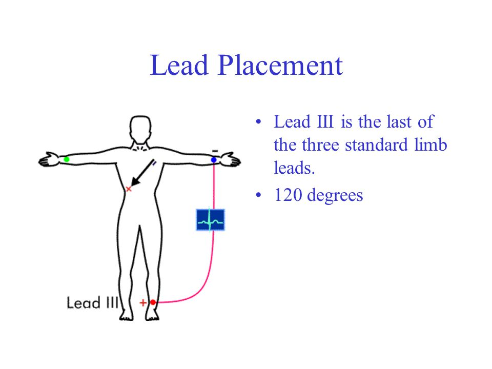 Lead Placement Lead III is the last of the three standard limb leads. 120 degrees