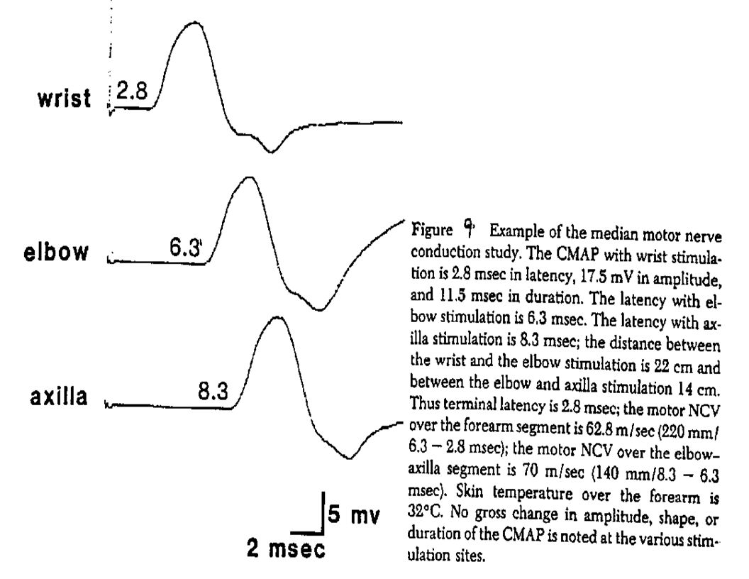 Motor Conduction Studies Multiple Points Along the Motor Nerve Are Stimulated.