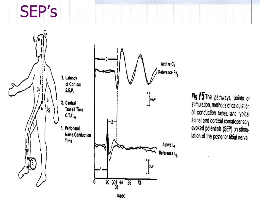 Somatosensory Evoked Potentials (Sep) The SEP Provides Information On: Peripheral Conduction Time.