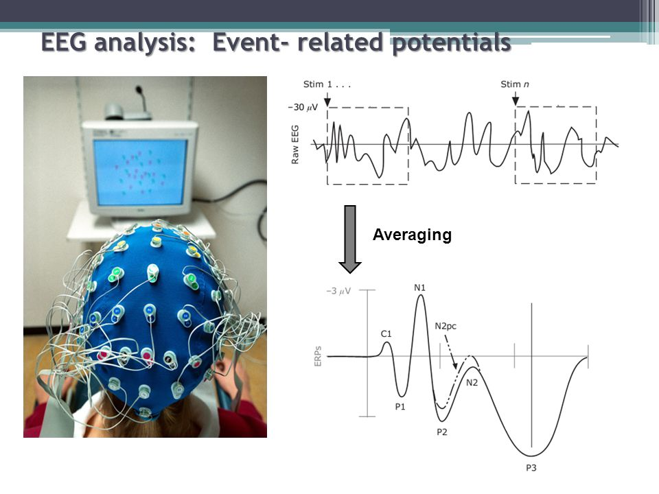 Averaging EEG analysis: Event- related potentials
