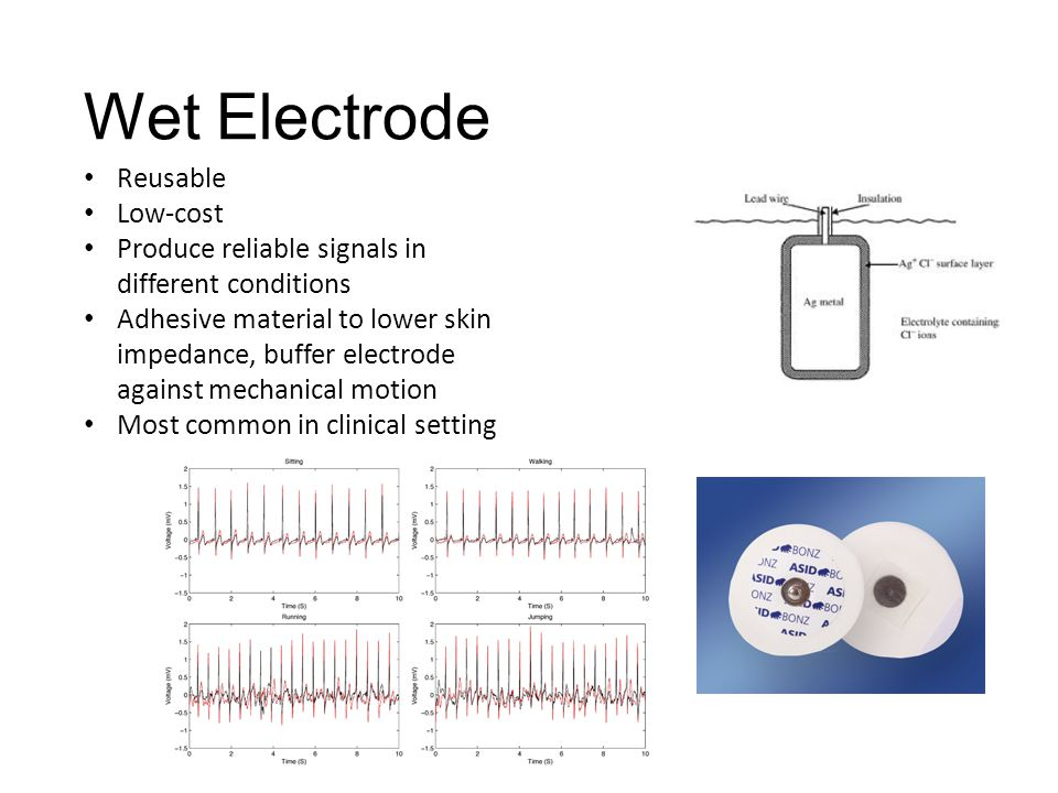 Floating Electrode Metal disk is recessed, swimming in the electrolyte gel It is not in contact with the skin Reduces motion artifact