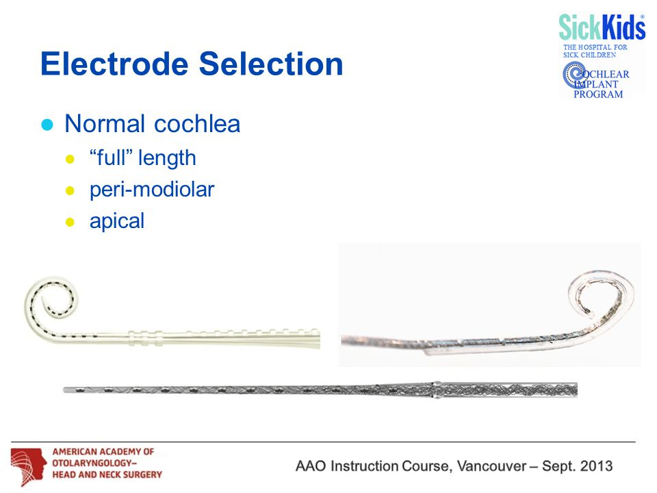 "Normal cochlea ""full"" length peri-modiolar apical Electrode Selection"