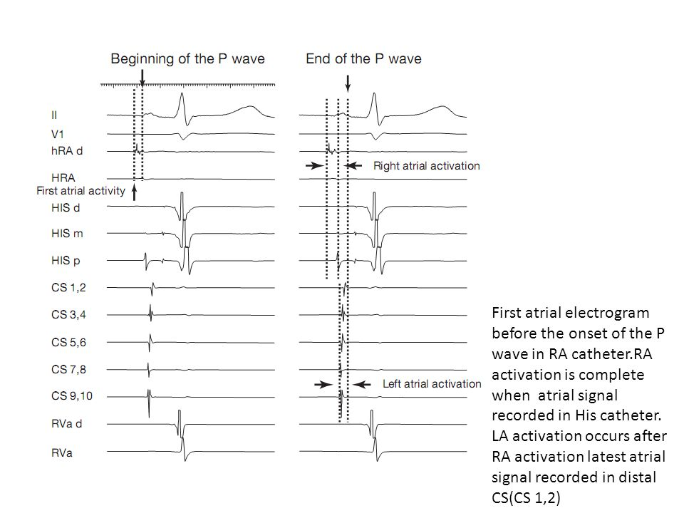First atrial electrogram before the onset of the P wave in RA catheter.RA activation is complete when atrial signal recorded in His catheter. LA activ
