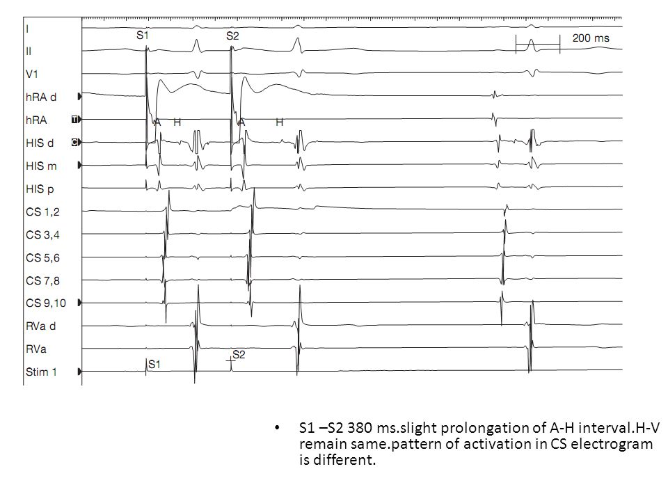 S1 –S2 380 ms.slight prolongation of A-H interval.H-V remain same.pattern of activation in CS electrogram is different.
